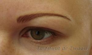 Na 1 behandeling, kleur wordt nog zachter en natuurlijker van kleur, hier waren helemaal geen haartjes meer aanwezig.
