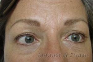 Wenkbrauwen en Eyeliners volledig genezen na 1 behandeling, worden nog iets intensiever met de controlebehandeling.